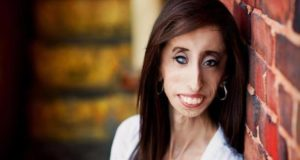 Lizzie Velasquez's Advice To Conquer Adversity & Live With Confidence