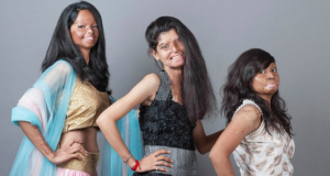 Indian Acid Attack Survivors Show Strength And Courage In New Photo Shoot